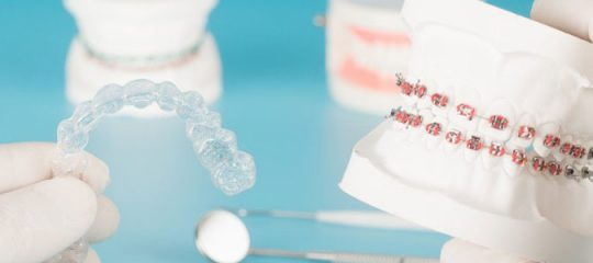 Solution orthodontique